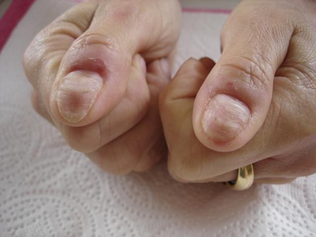 Comme guérir le microorganisme végétal sur les pieds les rappels